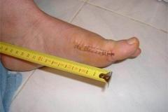 In-stitches2-Brenda-Bates